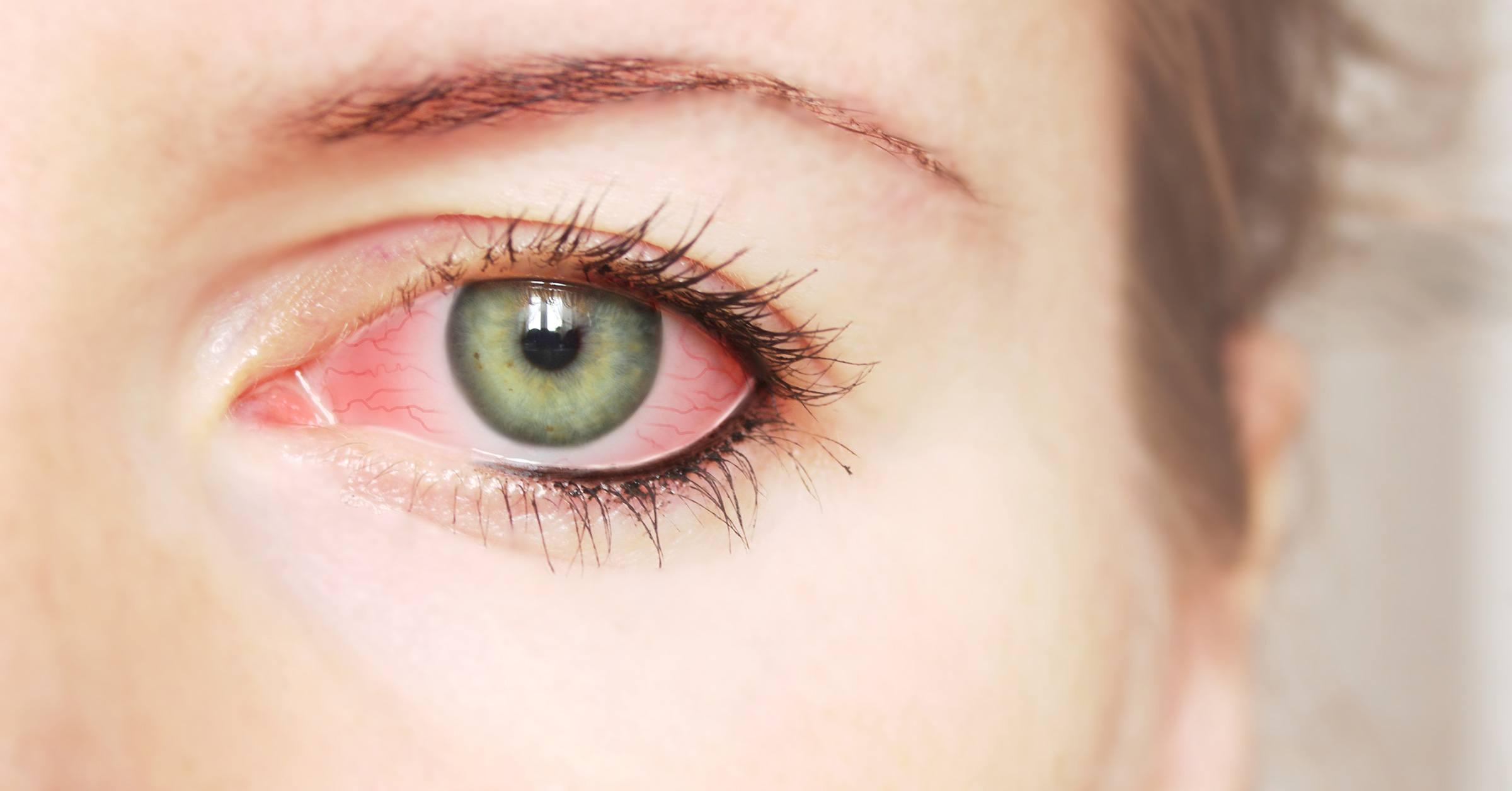 Kontaktlencse okozta szemgyulladás 1