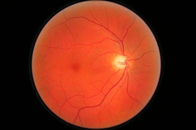 Szemfenék vizsgálat pupillatágítás nélkül 1