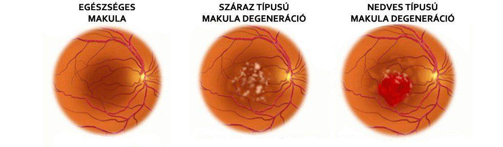 Szemfenék vizsgálat pupillatágítás nélkül 2