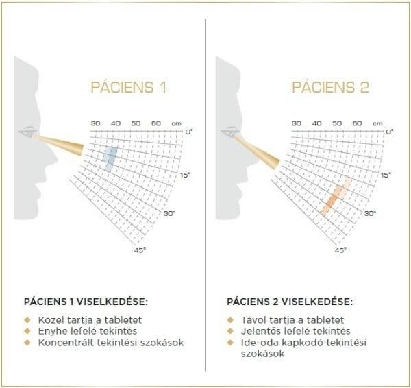 Varilux X multifokális lencse - közelre tekintési szokások (NVB)