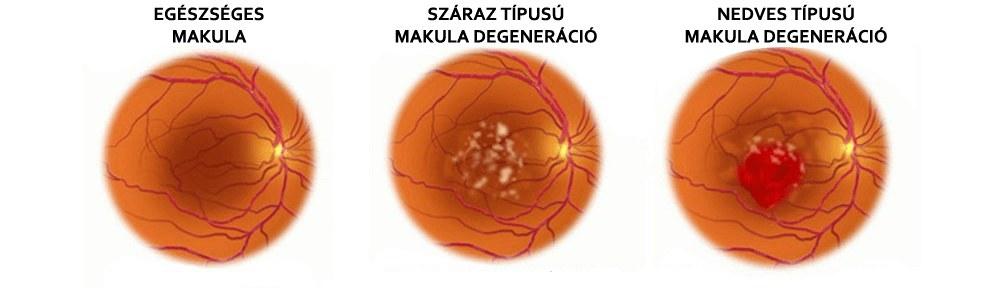 Szemfenéki kép macula degeneratio