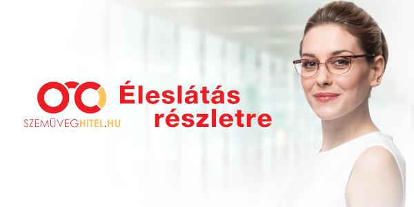 Szemüveghitel